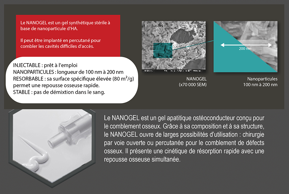 Drive Implants dentaire _ NANOGEL